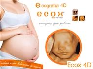 Ecografia 4D em Lisboa com a Ecox4D. Conheça o Seu Bebé Como Nunca Imaginou Ser Possível!